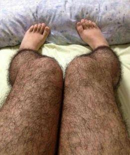 HairyLegs